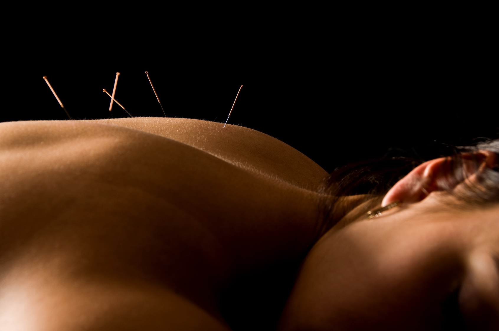 Acupuncture – Stimulates Proper Flow of Energy
